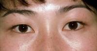 Asian Eyelid Surgery