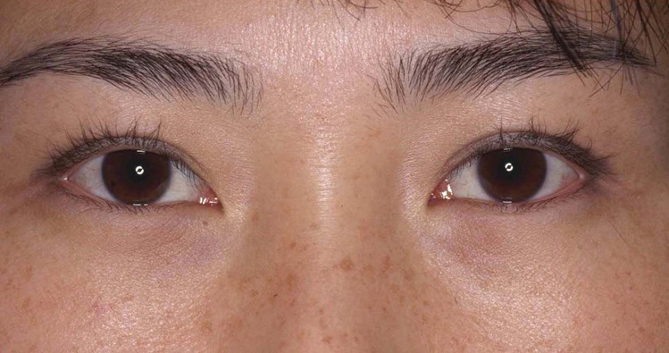 Asian eyelid surgery Los Angeles