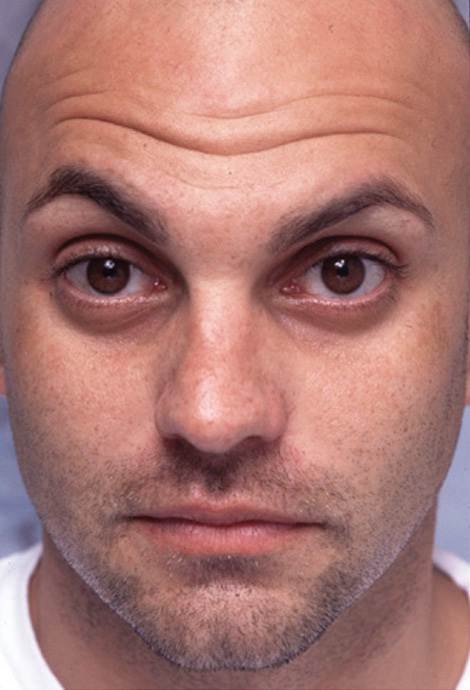 Botox