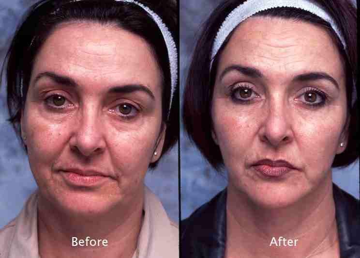 face and neck liposuction Beverly Hills