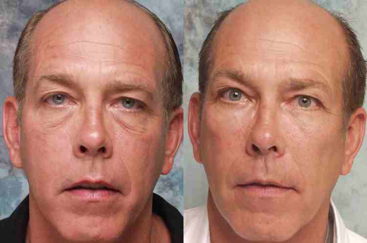 Mid Facelift Beverly Hills Cheek Lift Surgery Los
