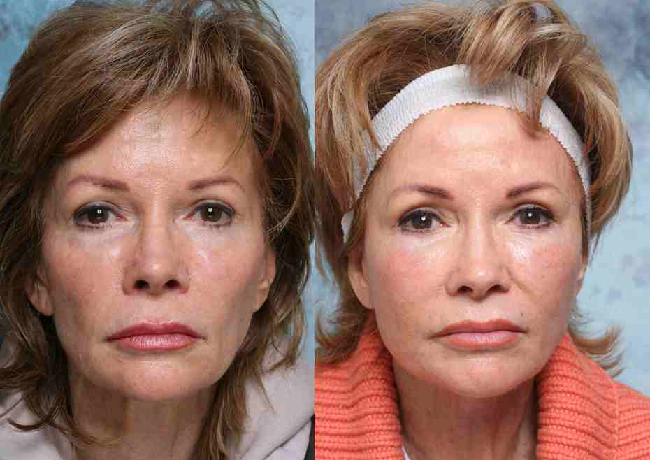 53f4f100193d1 Facelift | Beverly Hills | Los Angeles