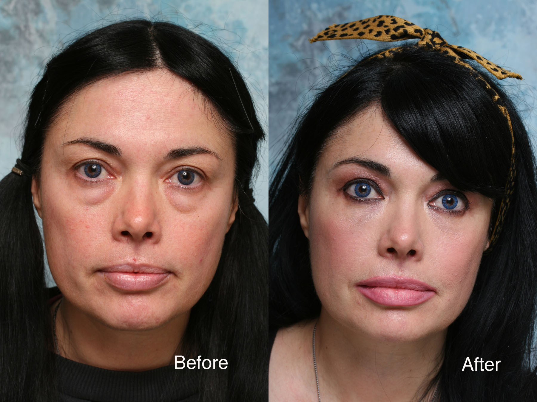 3 Effective Lower Eyelid Lift Treatments To Get Beautiful ... |Lower Blepharoplasty Recovery Photos
