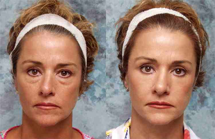 Eyelid Lift Surgery | Los Angeles Blepharoplasty | Cosmetic Surgery | Beverly Hills CA