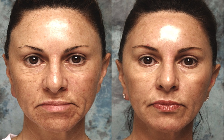 Botox Beverly Hills Xeomin Amp Dysport Los Angeles Lidlift