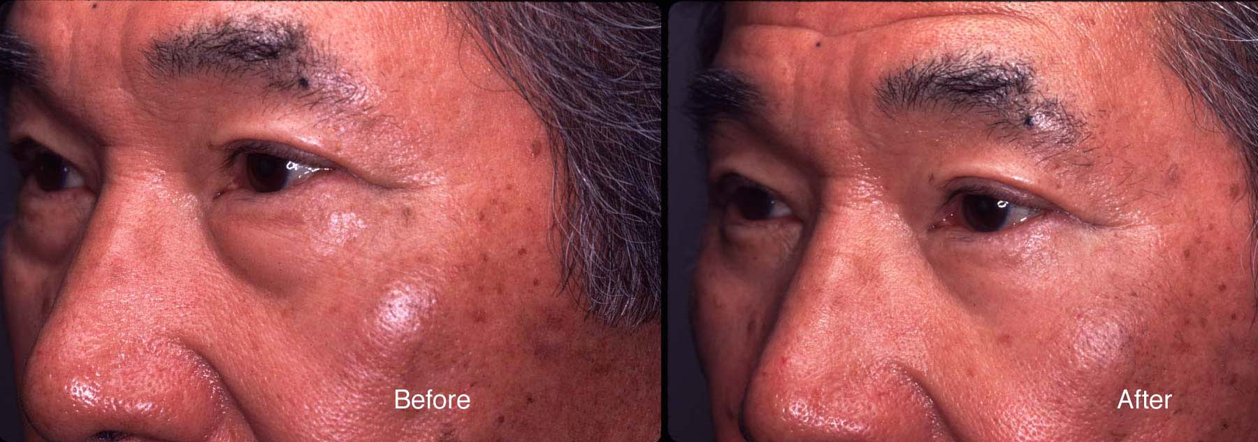 Case Studies | Eyelid Surgery Beverly Hills | LidLift