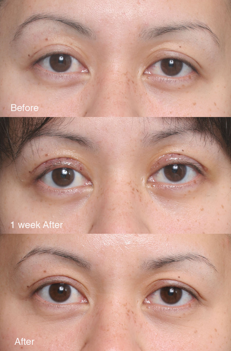 Asian double eyelid surgery los angeles