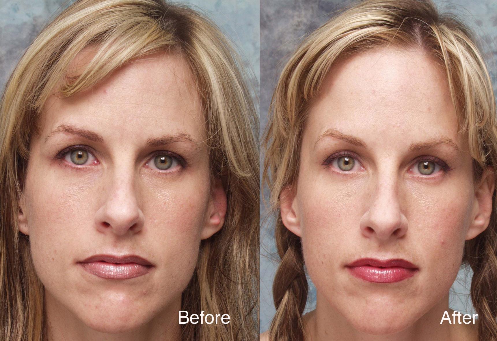 Botox Case Studies Beverly Hills Dysport Beverly Hills Lidlift