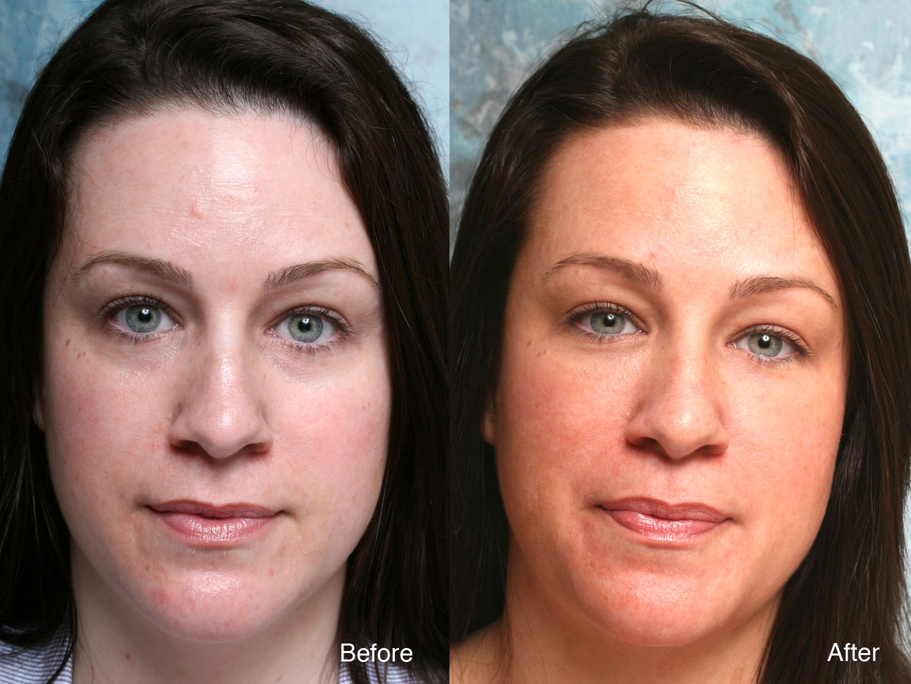 botox case Case 72 after one of her friends who is also our current patient recommended botox with dr steven camp, this mother in her early 30s reached out to our office to.