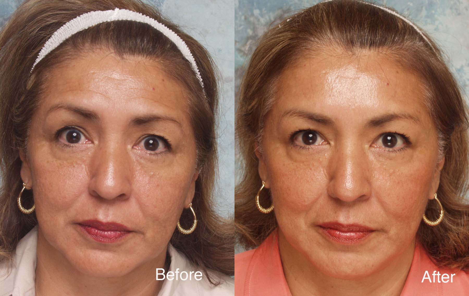 Botox Case Studies Beverly Hills | Dysport Beverly Hills ...