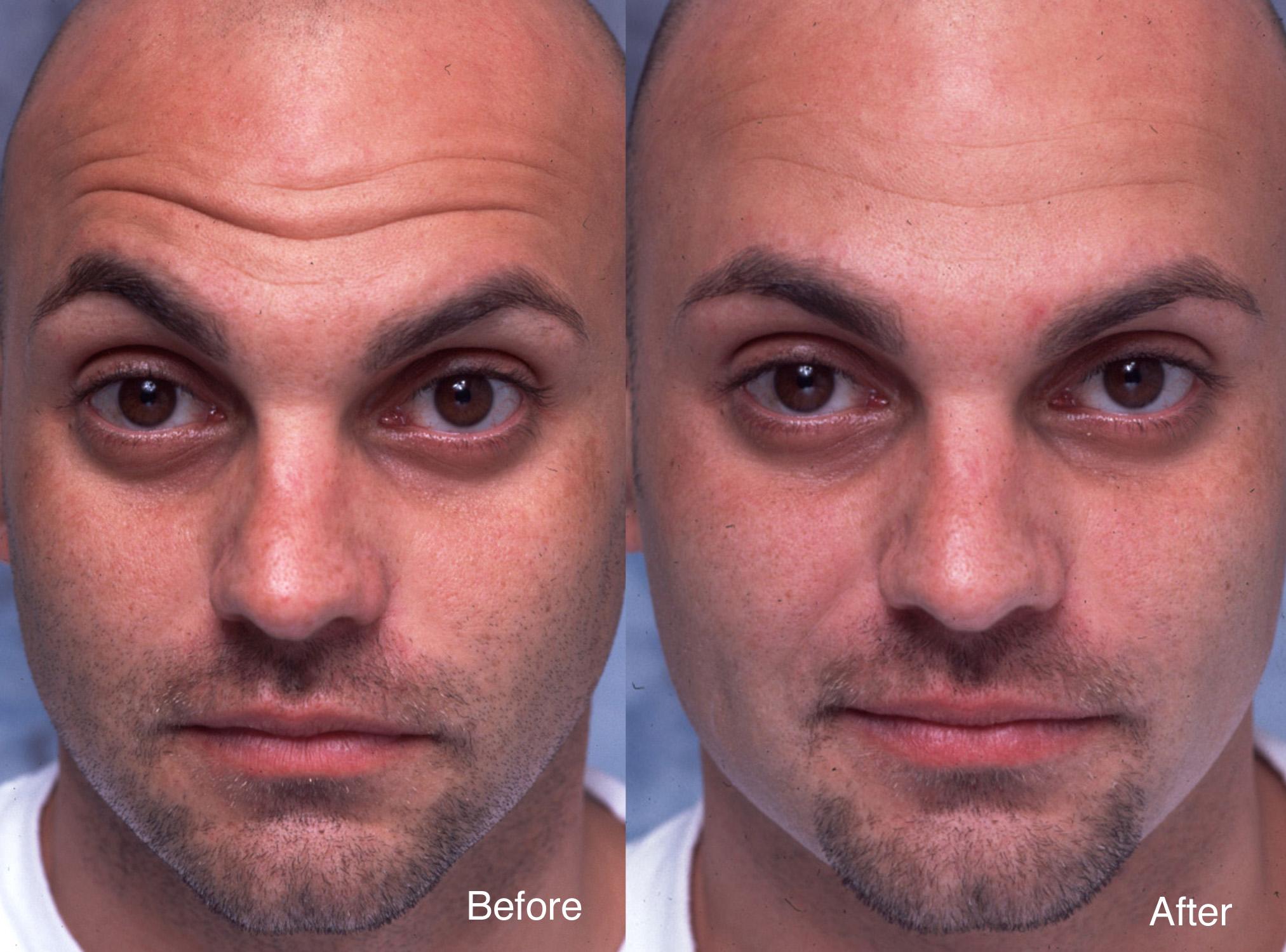 frontal lines botox ile ilgili görsel sonucu