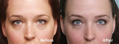 heavy eyelid surgery Beverly Hills