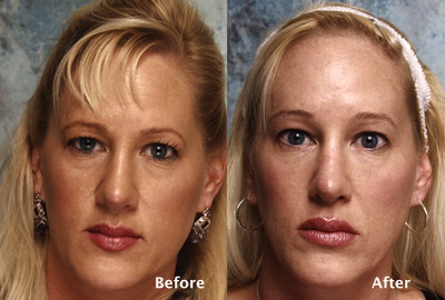 fat eyelids surgery beverly hills