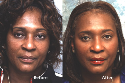 fat eyelids surgery los angeles