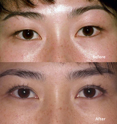 Eyelid Ptosis Surgery Los Angeles