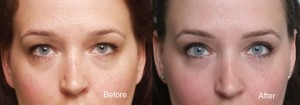 Micro-Blepharoplasty (micro cosmetic eyelid surgery) before and after