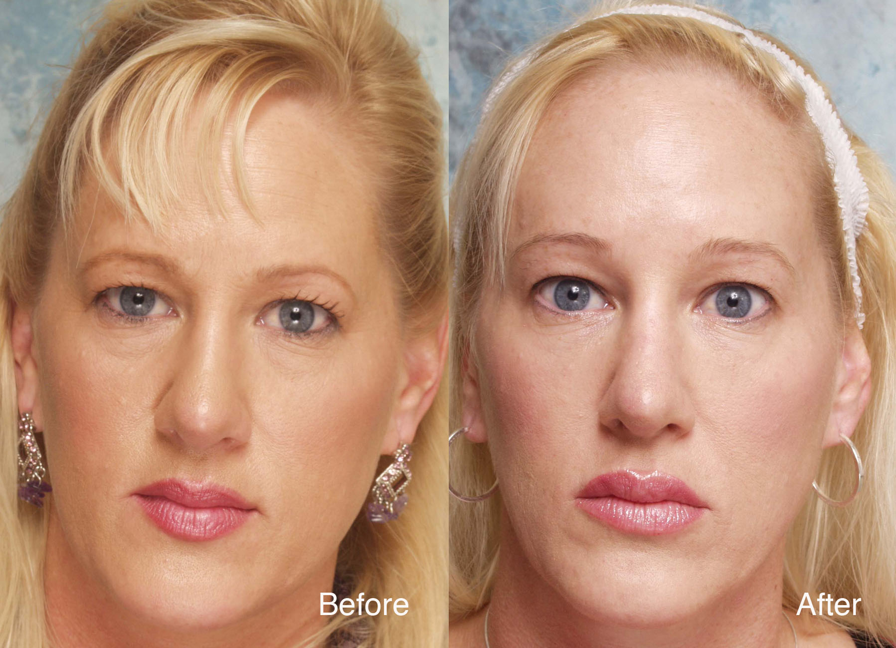 Beverly hill md lift and firming reviews - Heavy Eyelid Surgery Beverly Hills