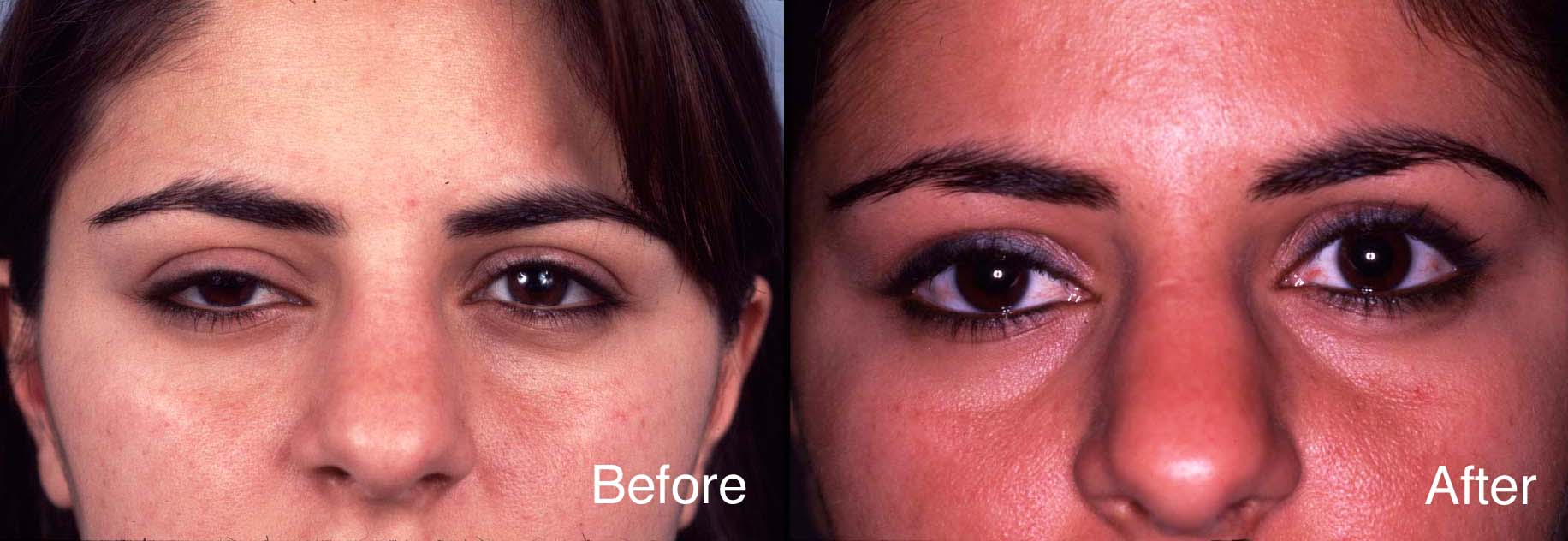 Eyelid Case Studies | Eyelid Ptosis Surgery | Beverly Hills | Los Angeles
