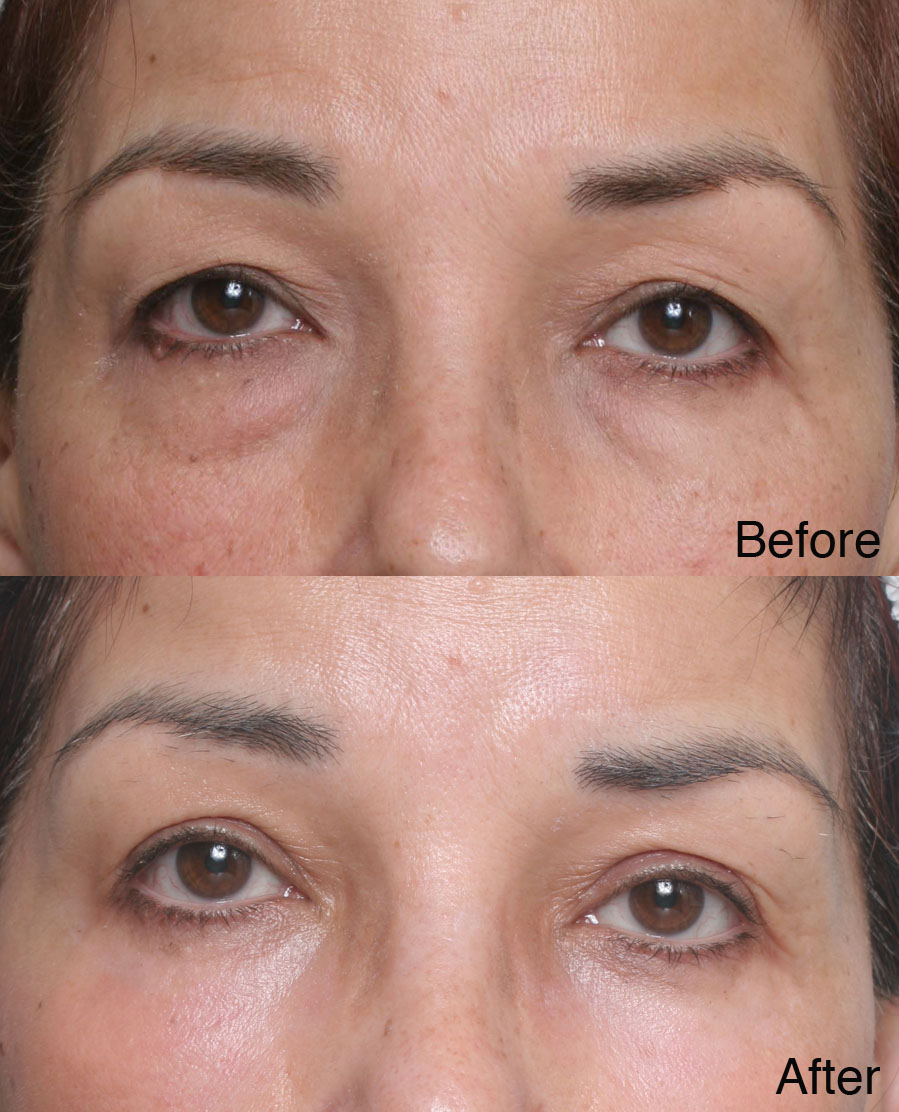 heavy eye lids surgery los angeles