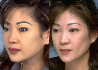 Fat Removal From Face 50