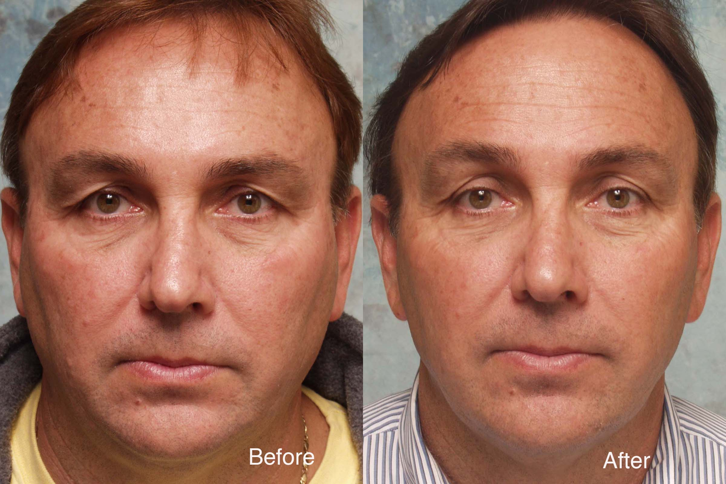Facial surgery for lower facial