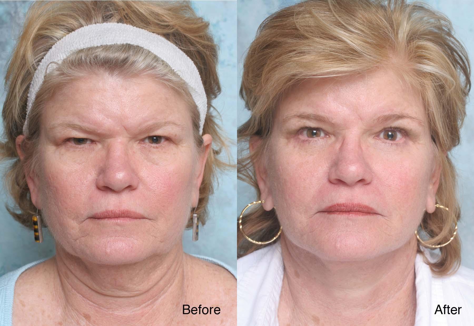 Best facial surgeon images 681