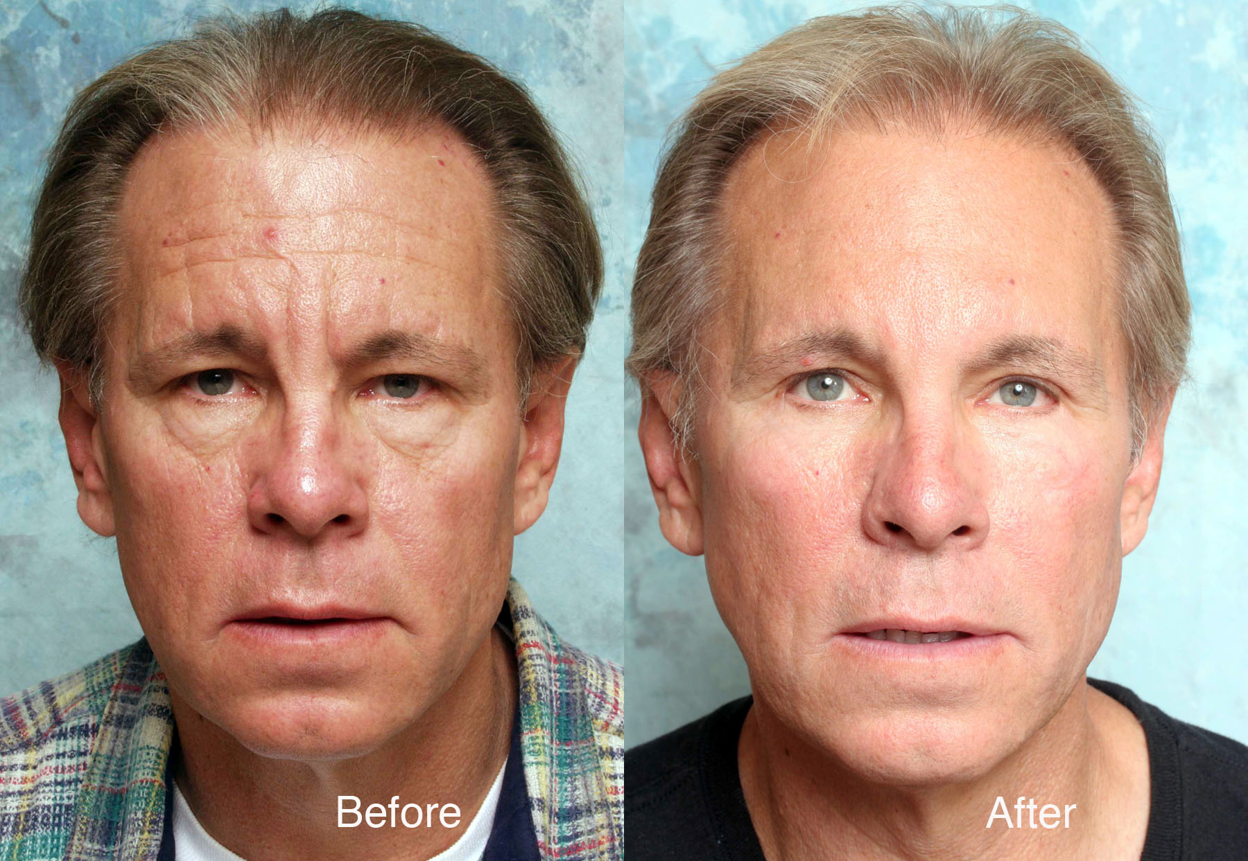 Facial plastic surgery cheeks photo