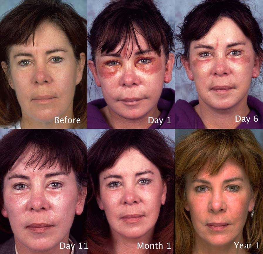 facelift case studies beverly hills facial tightening
