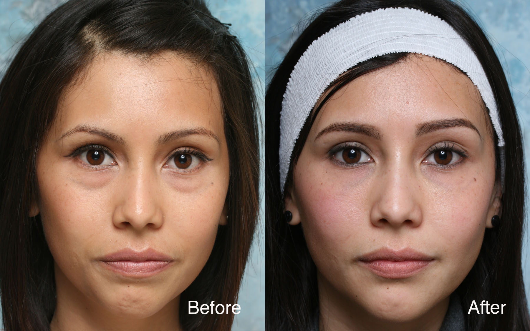 Image result for before and after under eye filler