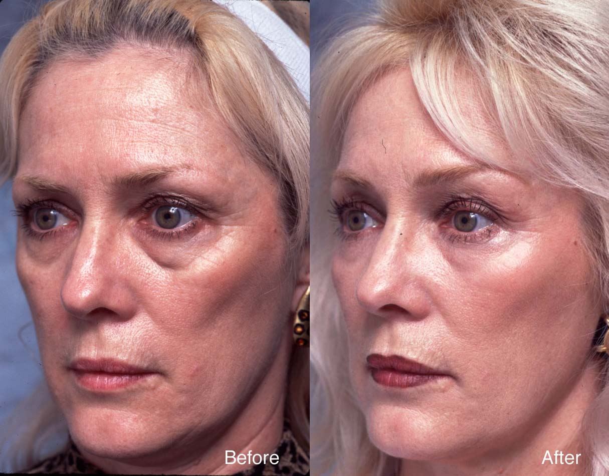 Forehead Lift Case Studies Beverly Hills Brow Lift Case