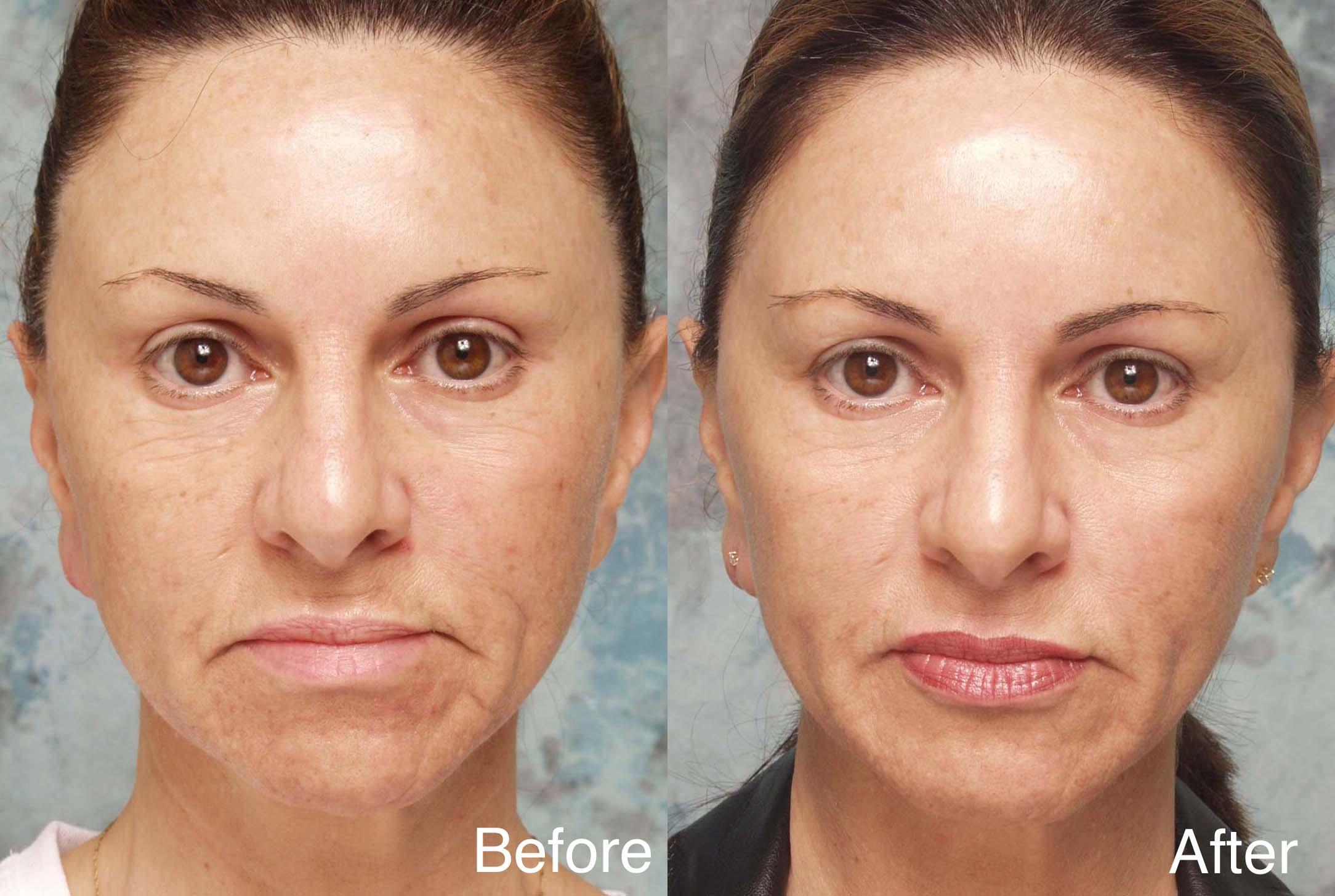 Facial wasting treatment