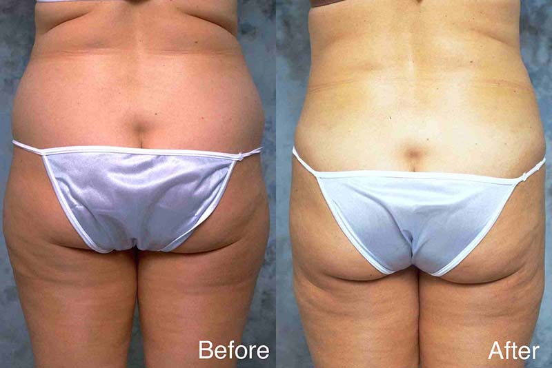 Liposuction-example-1-L