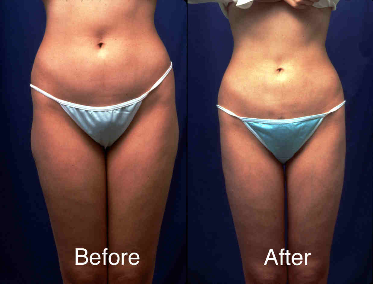 Liposuction-example-2-L