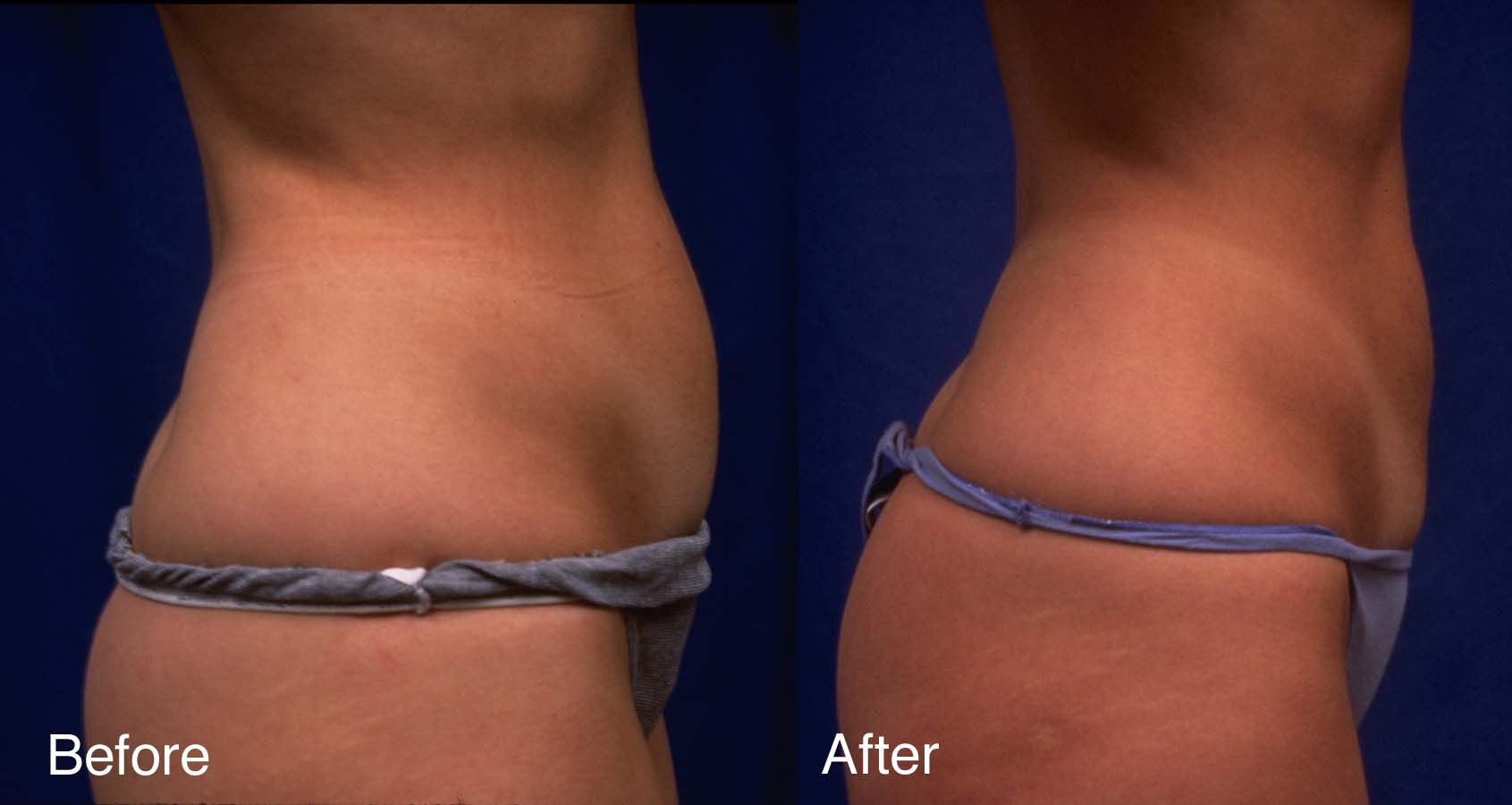 Liposuction-example-3-L