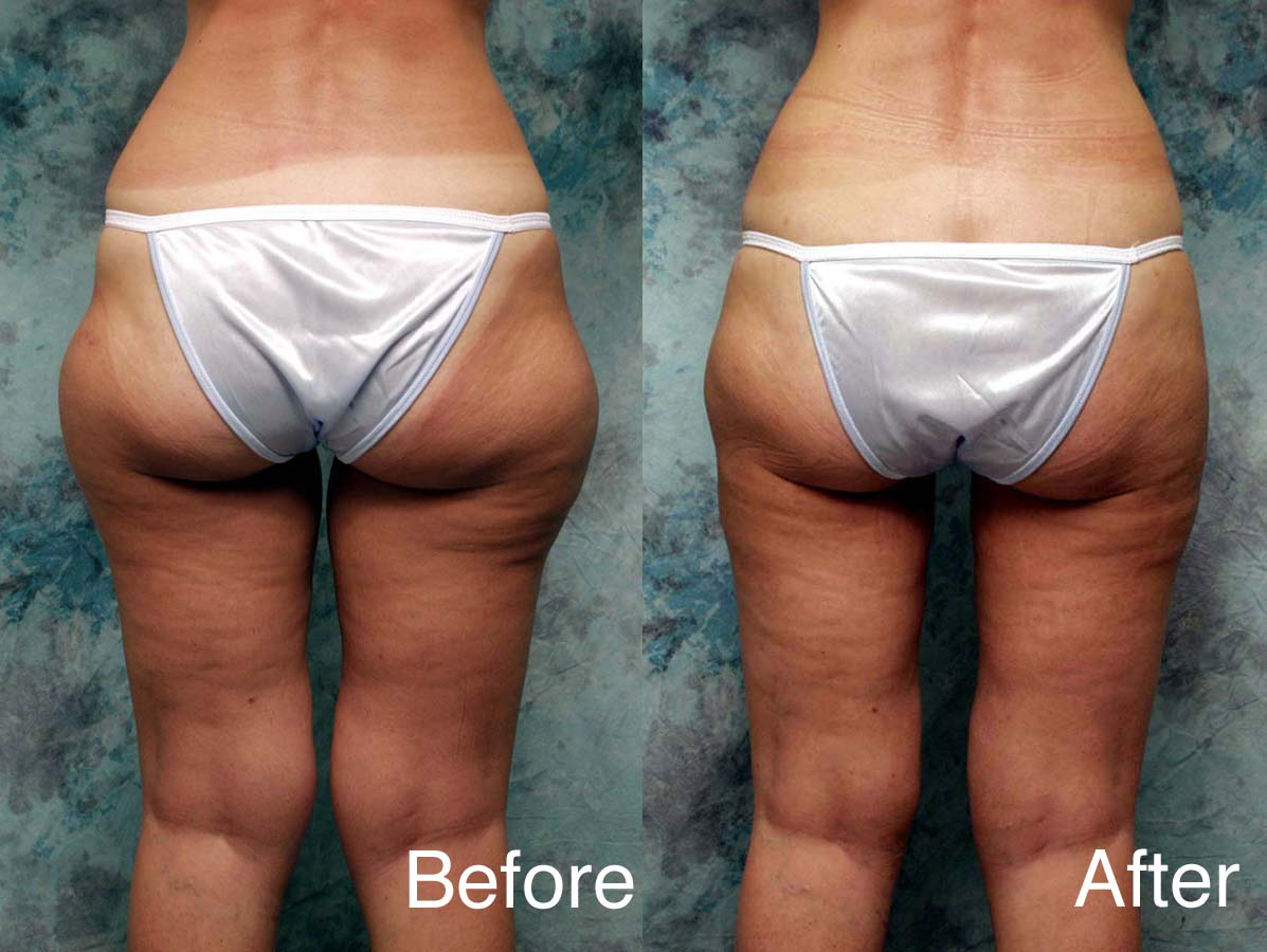 Liposuction-example-5-L