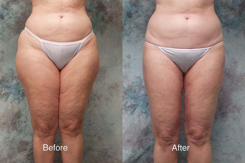 Liposuction-example-7-L