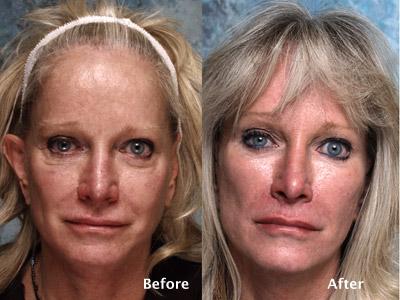 Midface Surgery Case Studies Beverly Hills | Cheek Lift ...