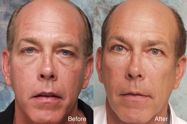 Midface Surgery Case Studies Beverly Hills Cheek Lift