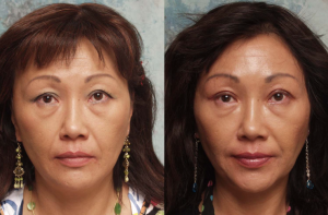 Asian Blepharoplasty | Eyelid Surgery | Beverly Hills | Los Angeles CA