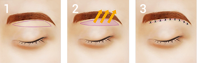 Sub-brow blepharoplasty Beverly Hills Los Angeles Korea Plastic ...