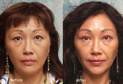 beverly hills asian eyelid surgery