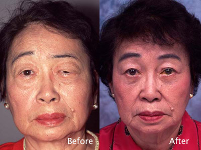 Asian Eyelid Case Studies | Facial Rejuvenation | Beverly Hills | Los Angeles CA