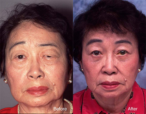 Los angeles facial paralysis doctor