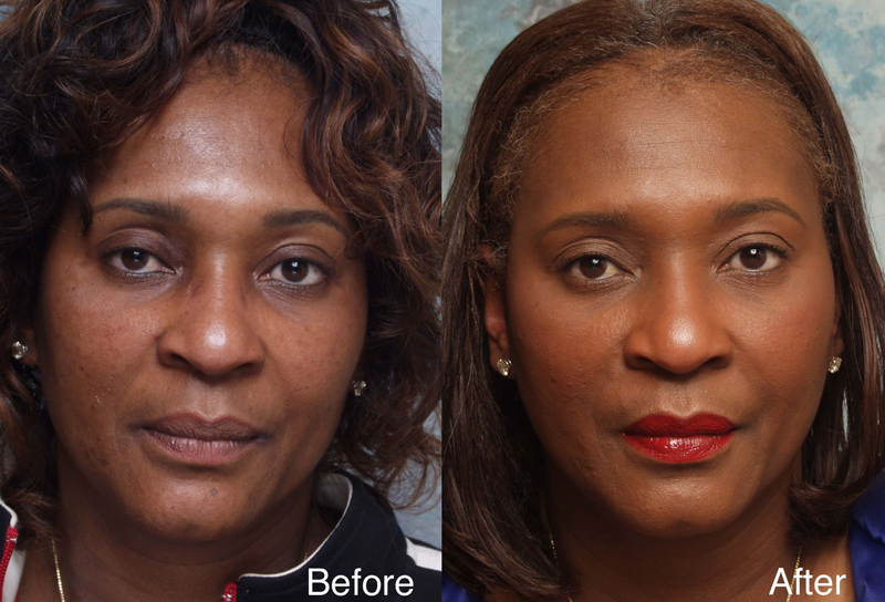 heavy eyelid surgery los angeles