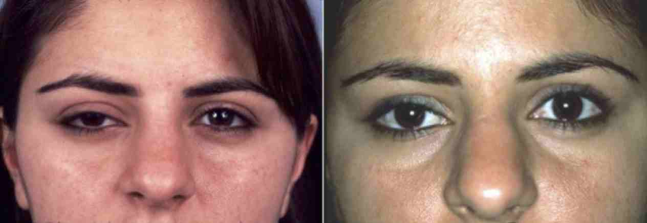 eyelid malposition surgery before and after