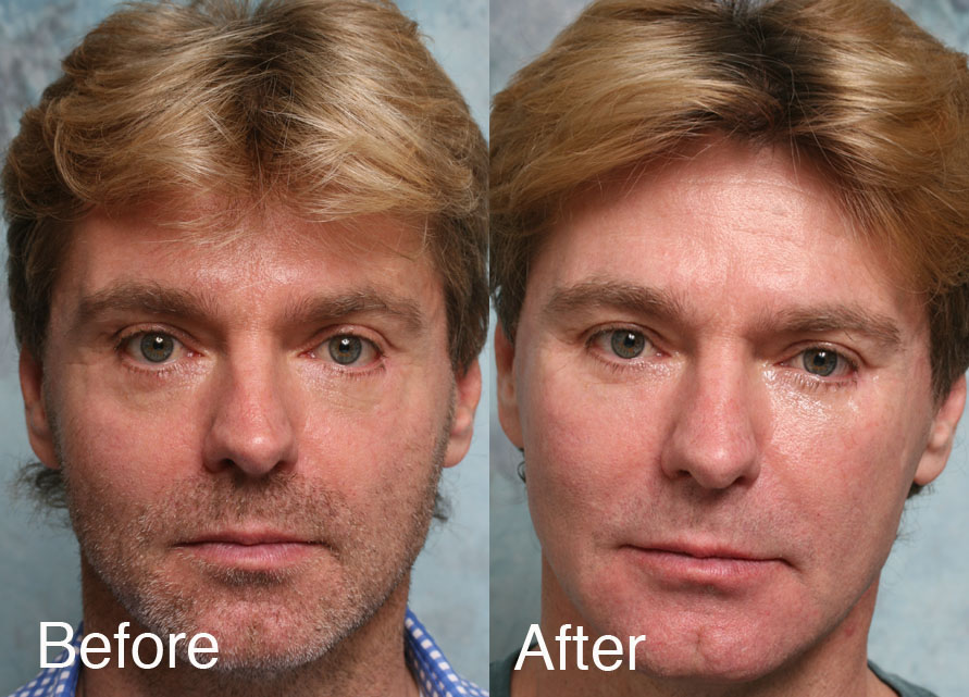 Fixing Botched Lower Eyelids Surgery | Repair Lower Eyelid ... Ectropion After Lower Blepharoplasty