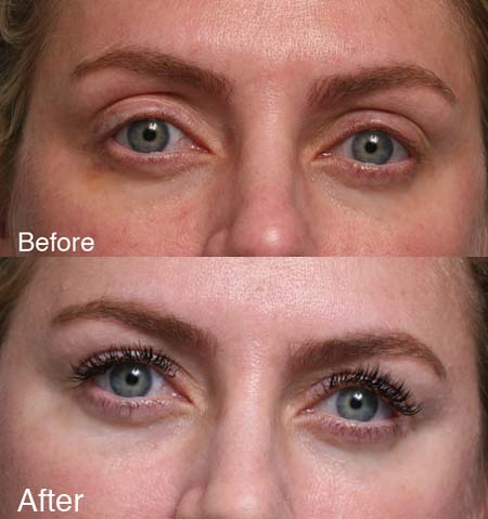 ptosis Beverly Hills patient 2