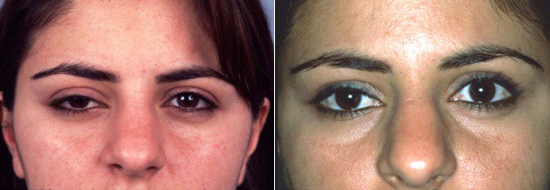 ptosis Beverly Hills patient 3