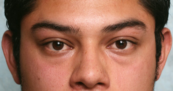 lower eyelid surgery before