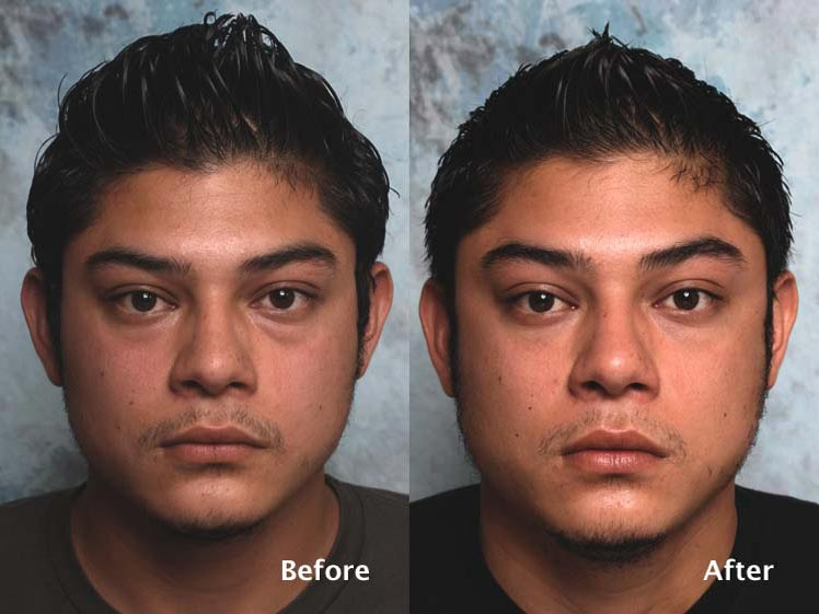 Blepharoplasty for Men
